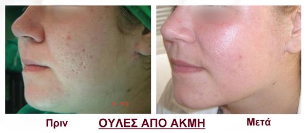 pierdere în greutate cicatrici acnee